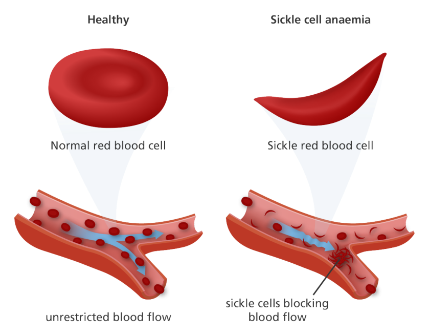 disorder_sickle_cell_anaemia_yourgenome