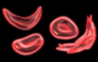 sdut-sickle-cell-lexiscan-2013jun16