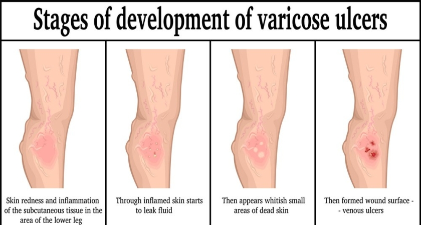 stages-of-development-of-varicose-ulcers-vector-13257316.jpg