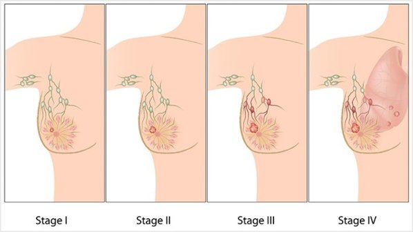 Breast-Cancer-Stages-What-do-They-Mean-722x406