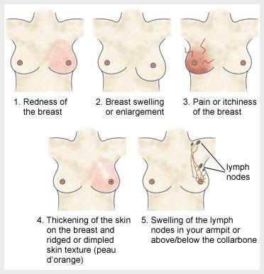 Breast-cancer-symptoms1