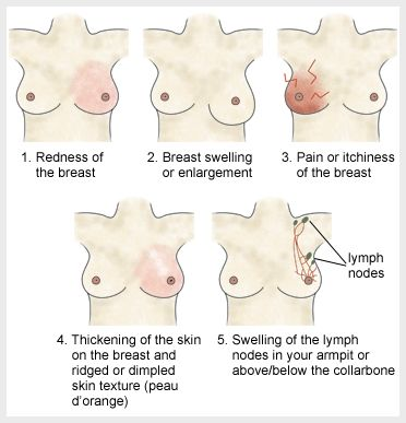 Breast-cancer-symptoms1