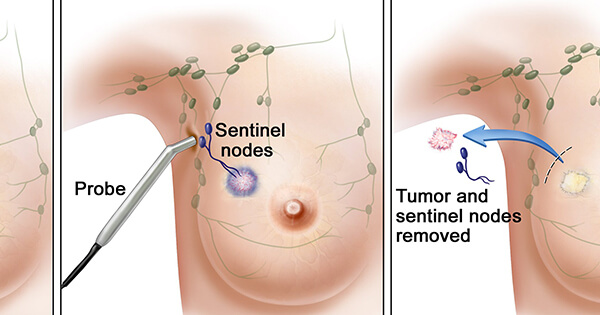 sentinel-lymph-node-biopsy-sm.__v40061411